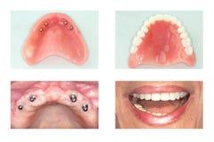 Implante dental del mandíbula superior imagen de archivo