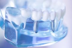 Implante dental do dente de Dentsts fotos de stock royalty free