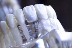 Implante dental dos dentes do dentista foto de stock