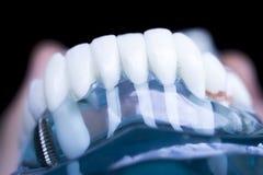 Implante dental dos dentes do dentista imagens de stock royalty free