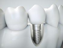 Implante dental - representación 3d Fotos de archivo libres de regalías