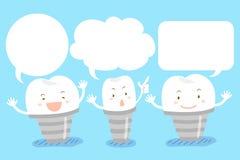 Implante do dente com bolha do discurso Imagens de Stock