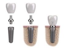 Implante humano del diente Fotografía de archivo libre de regalías