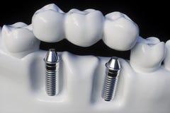 Implante humano del diente - representación 3d ilustración del vector