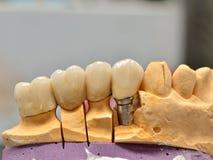 Implanted apoyó los dientes del puente imagen de archivo libre de regalías