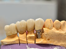 Implanted porcelain teeth Royalty Free Stock Image