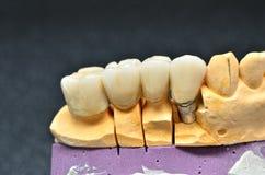 Porcelain teeth crown Stock Image