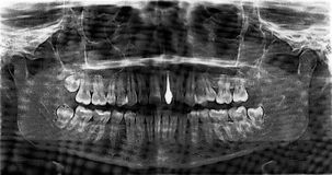 Implanted tooth | Scanned film Stock Photo
