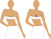 Implantes de peito Fotografia de Stock Royalty Free