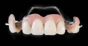 Implantes dentais Imagens de Stock