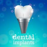 Implantes dentais 1 Foto de Stock Royalty Free