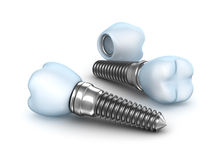 Implantes dentais, coroa com o pino no branco Imagem de Stock Royalty Free