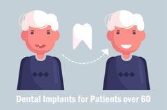 Implantes dentais para o vetor idoso cartoon Homem isolado da arte ilustração do vetor