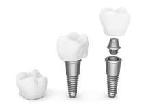 Implantes dentales Fotos de archivo libres de regalías