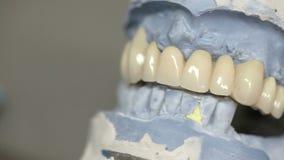 Implantes dentales de los objetos del dentista metrajes