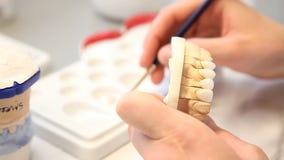 Implantes dentales de los objetos del dentista almacen de video