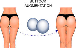 Implantes femeninos de las nalgas, aumento de la nalga stock de ilustración