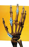 Implantes na mão humana Imagens de Stock