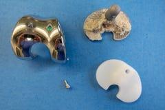 Implantes quitados de una pr?tesis de la rodilla foto de archivo libre de regalías