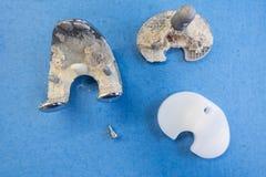 Implantes removidos de uma prótese do joelho fotografia de stock