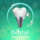 Implants dentaires 1 illustration libre de droits