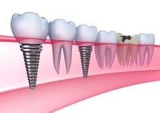 Implants dentaires dans la gomme Photographie stock libre de droits