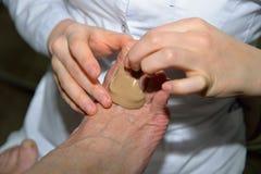 Imposer-formes principales d'orthopédiste une masse corrective de silicone dessus photos stock