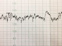 Impresión del informe del cardiograma foto de archivo