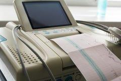 Impresión del informe del cardiograma que sale del electrocardiógrafo en sala de trabajo Fotografía de archivo