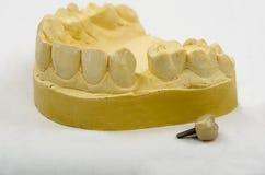 Impresión dental, implante de la corona imagenes de archivo