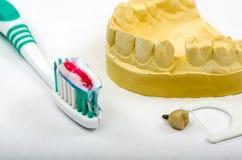 Impresión dental, implante de la corona con el cepillo de dientes y crema dental imagen de archivo