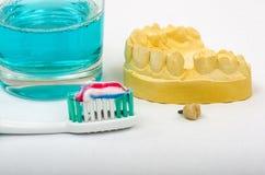 Impresión dental, implante de la corona con el cepillo de dientes y crema dental foto de archivo libre de regalías