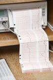 Impreso de EKG fotos de archivo