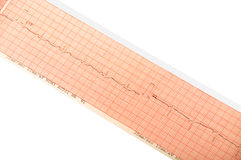 Impression d'ECG Image stock