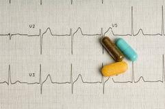 Impression d'EKG Photo libre de droits