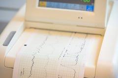 Impression de rapport de cardiogramme sortant de l'électrocardiographe dans la salle de travail Photos libres de droits