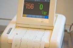 Impression de rapport de cardiogramme sortant de l'électrocardiographe dans la salle de travail Images libres de droits