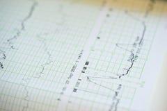 Impression de rapport de cardiogramme sortant de l'électrocardiographe dans la salle de travail Photos stock