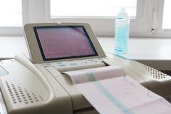 Impression de rapport de cardiogramme sortant de l'électrocardiographe dans la salle de travail Image libre de droits