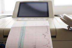 Impression de rapport de cardiogramme sortant de l'électrocardiographe dans la salle de travail Images stock