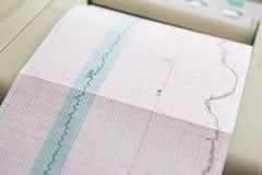 Impression de rapport de cardiogramme sortant de l'électrocardiographe dans la salle de travail Photographie stock libre de droits