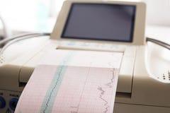 Impression de rapport de cardiogramme sortant de l'électrocardiographe dans la salle de travail Photographie stock