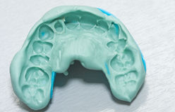Impressione dentale fotografie stock