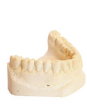 Impressione dentale 3 Fotografie Stock