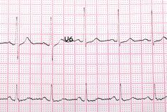 Impresso de EKG imagem de stock