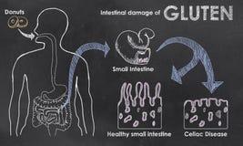 Inälvs- skada av gluten vektor illustrationer