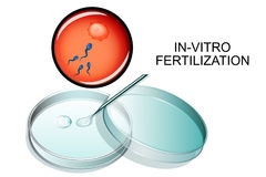 Free In-vitro Fertilization. Royalty Free Stock Photo - 97300375