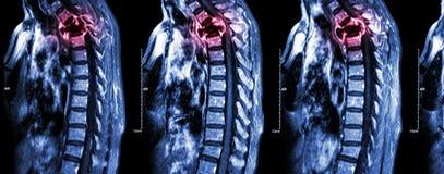 Inbindningsmetastasis (cancerspridning till den thorakala ryggen) arkivfoton