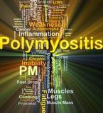 Incandescência do conceito do fundo do PM do Polymyositis Imagens de Stock