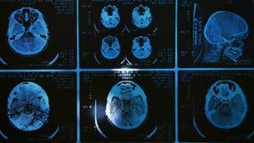 Incandescência e varredura brilhante de MRI filme